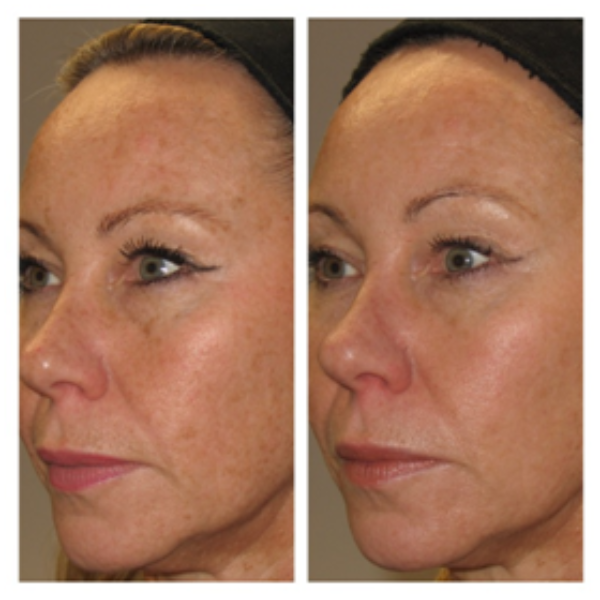 Before (L) and after (R) Fotofacial treatment