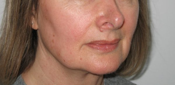 A lady's face ftera pigmentation treatment