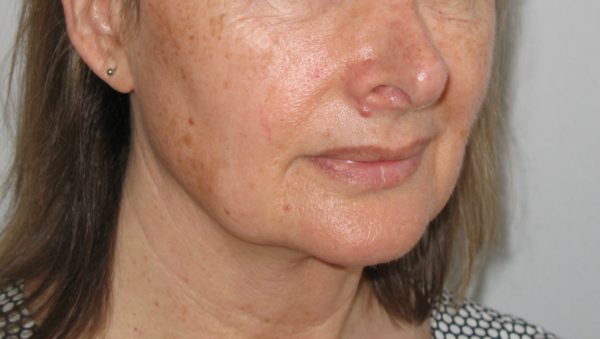 A lady's face before pigmentation treatment