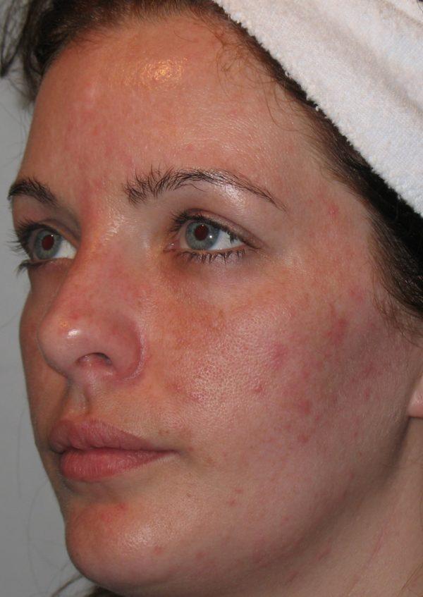Before Epionce Skin Peel