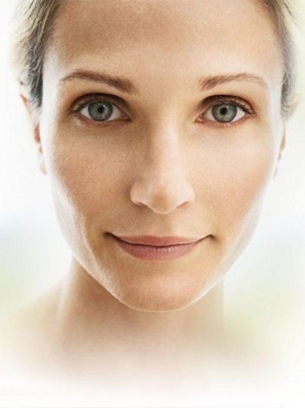 A lady after JUVEDERM treatment