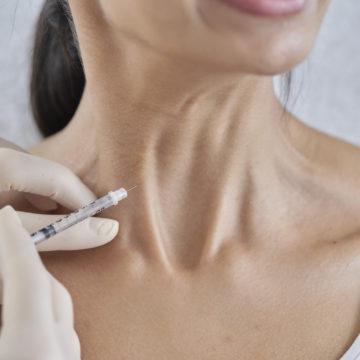 Botox™ Neck Lift