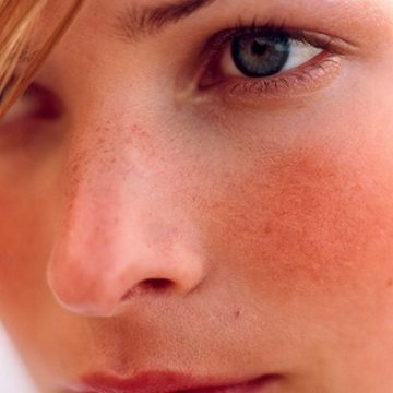 Three ways to deal with Rosacea