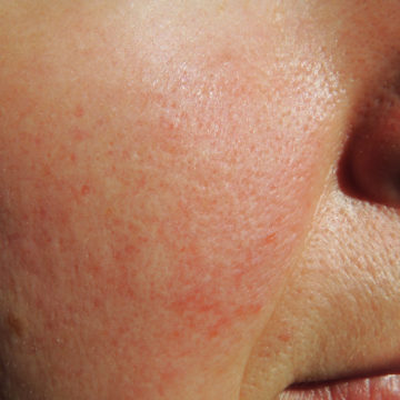 Facial Redness, Rosacea And Blushing