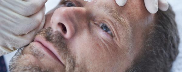 Botox™ for Men