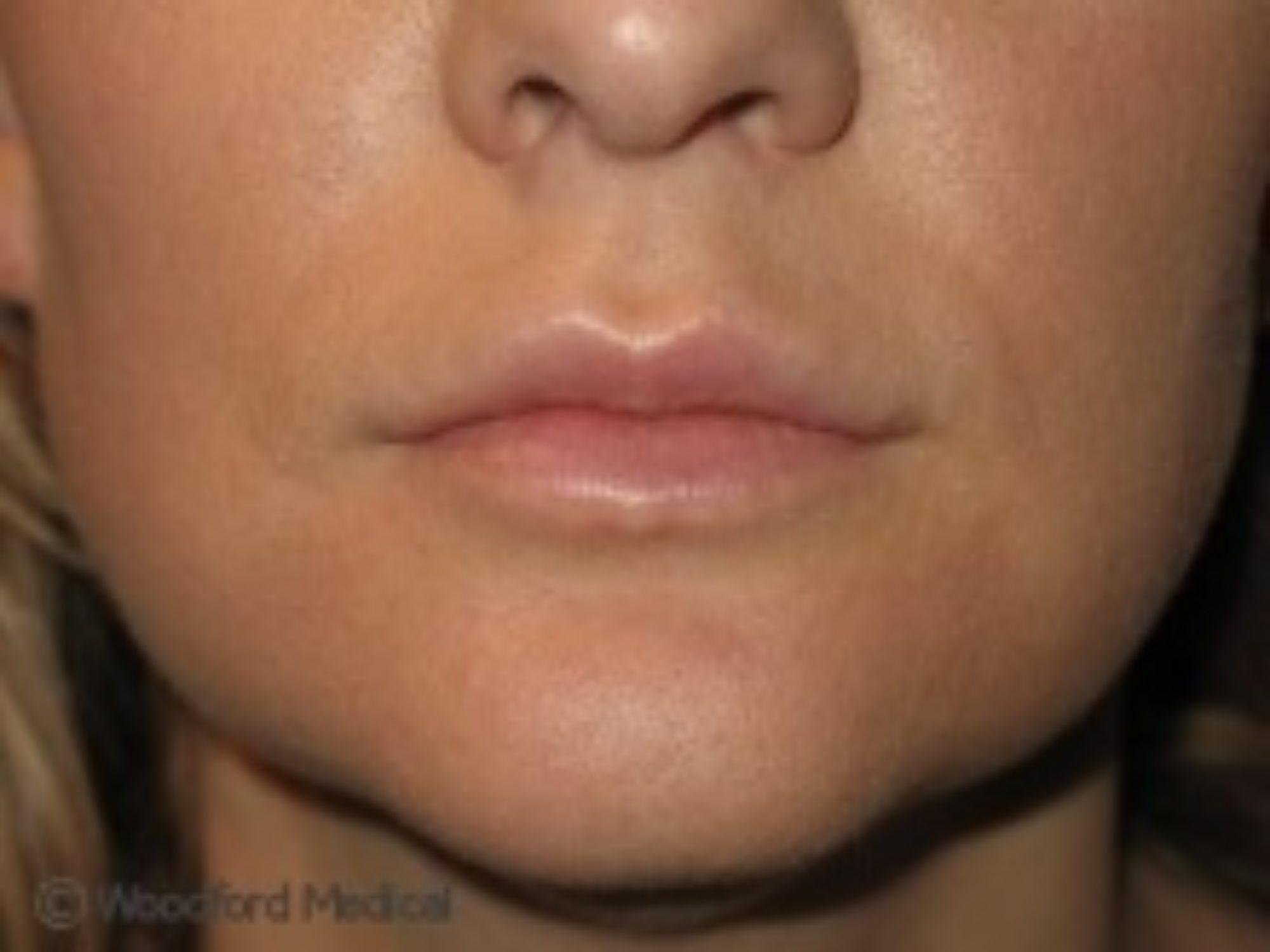 Lip Fillers | Woodford Medical